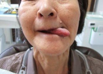 舌は自由に動かせますか?
